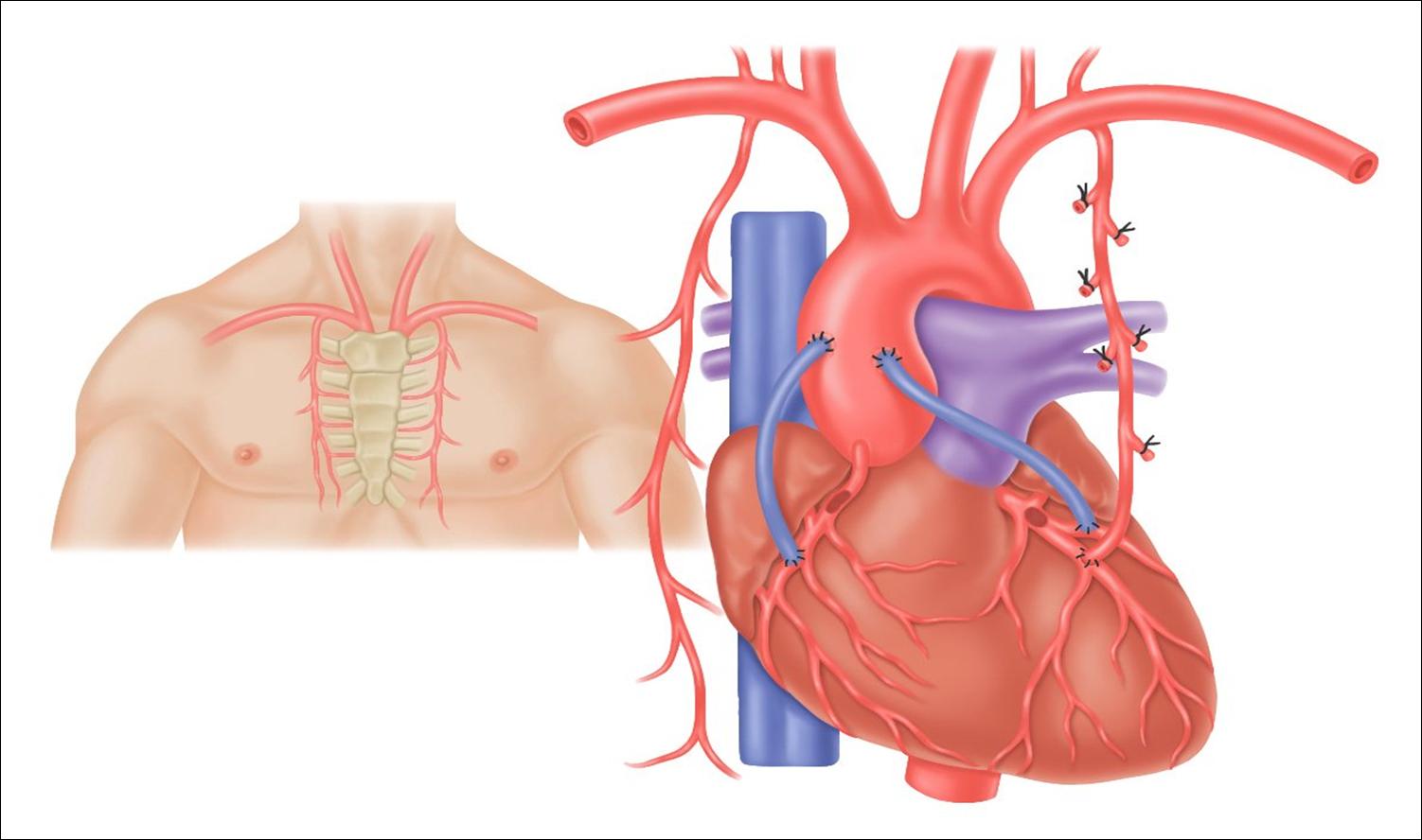 Penggantian Katup Jantung