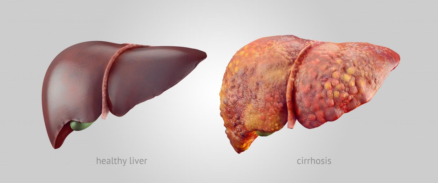 penyakit hati kronis
