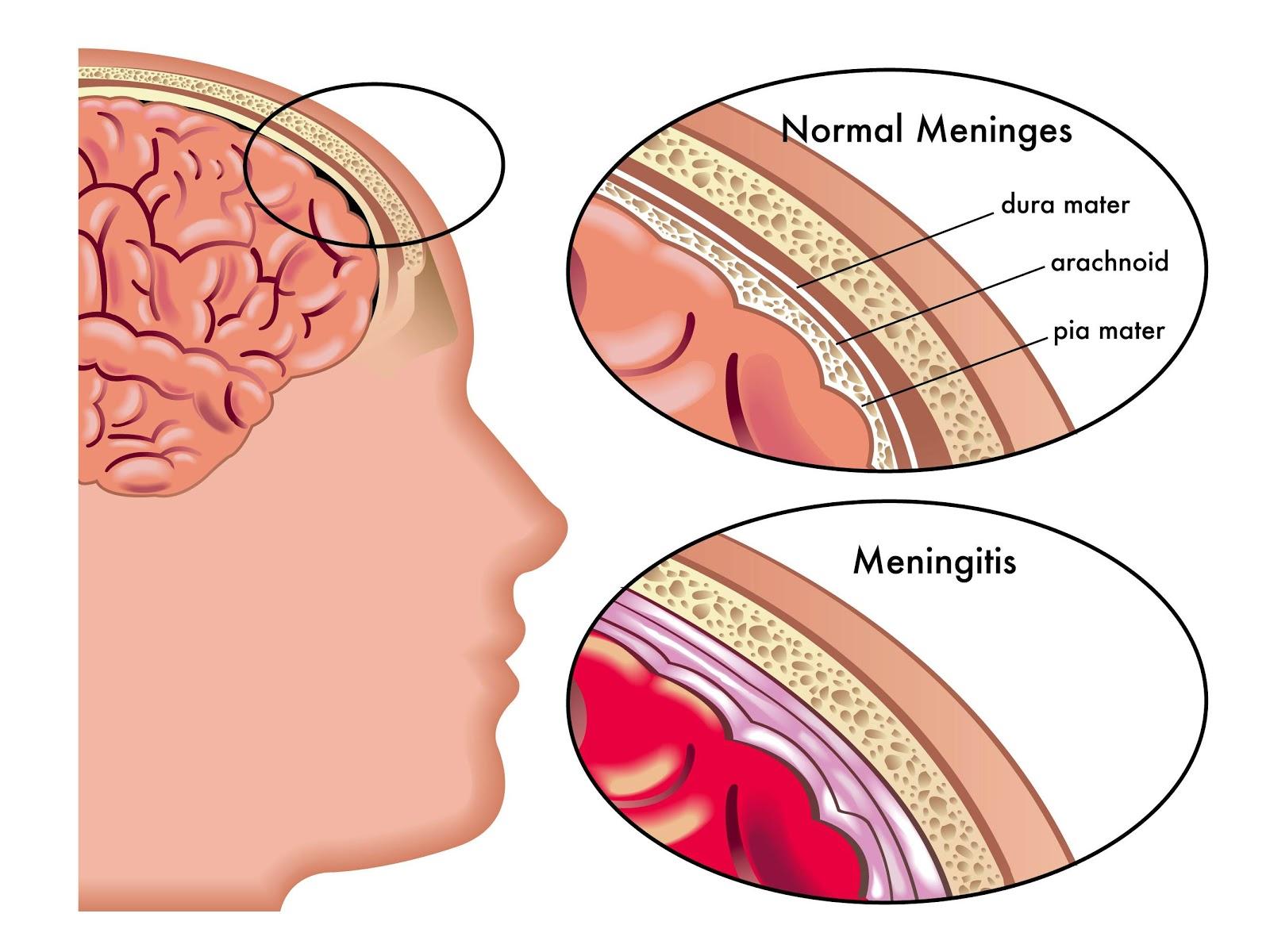 Meningitis Bakteri