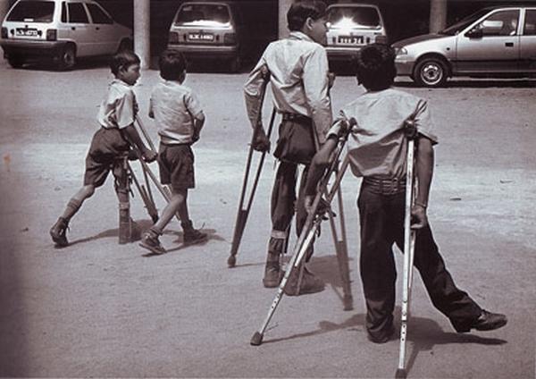 Penyakit Poliomyelitis