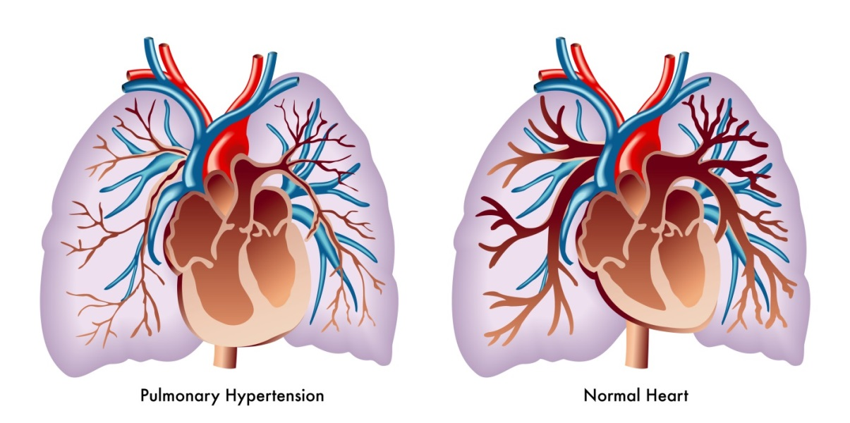 pulmonary arterial hypertension premier