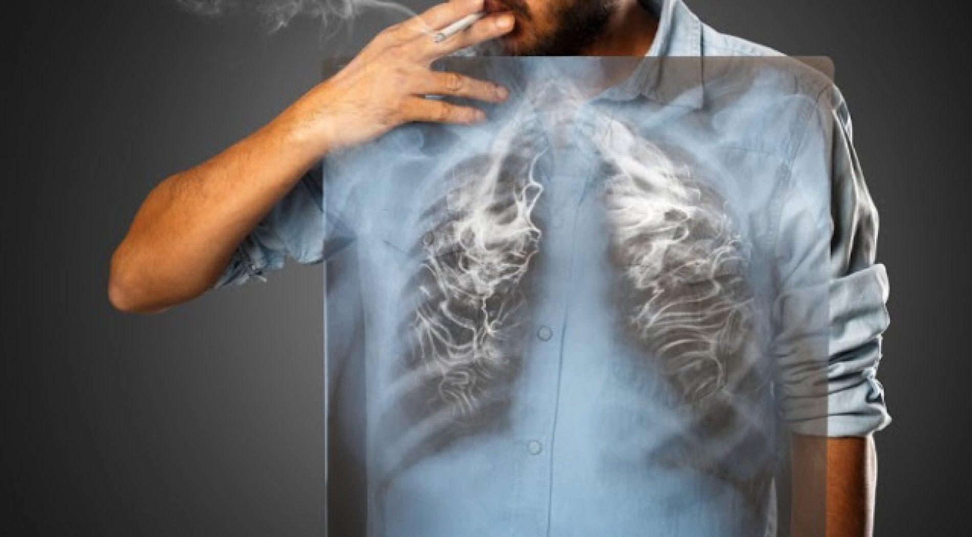 penyakit paru-paru kronis