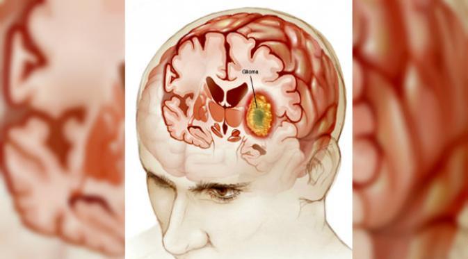 tumor jinak otak