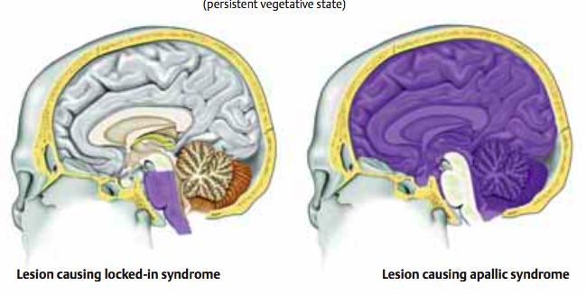 Apallic Syndrome