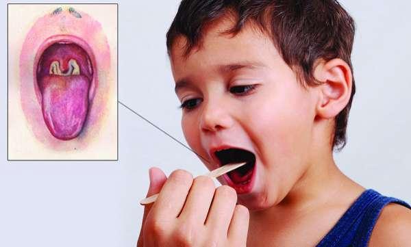 penyakit difteri