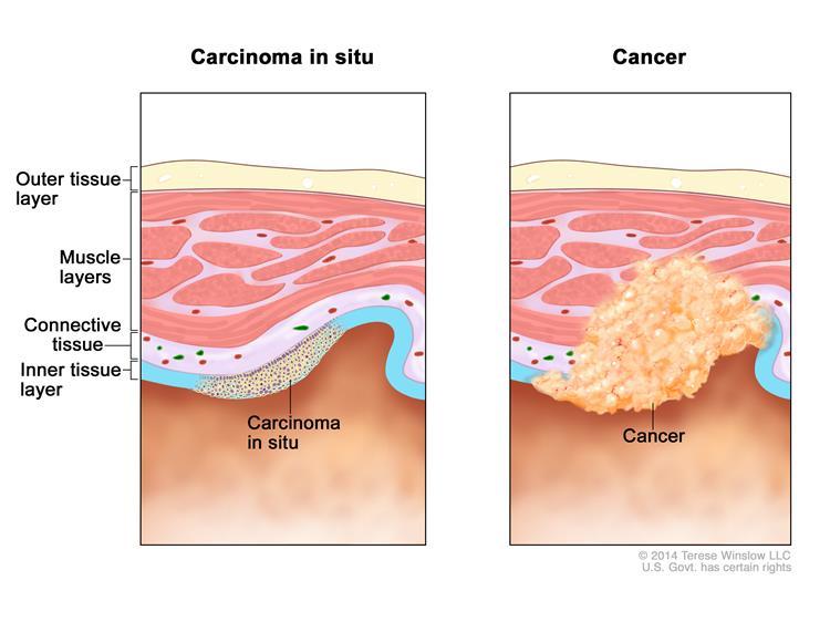 karsinoma in situ