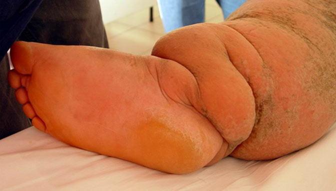 penyakit kaki gajah kronis