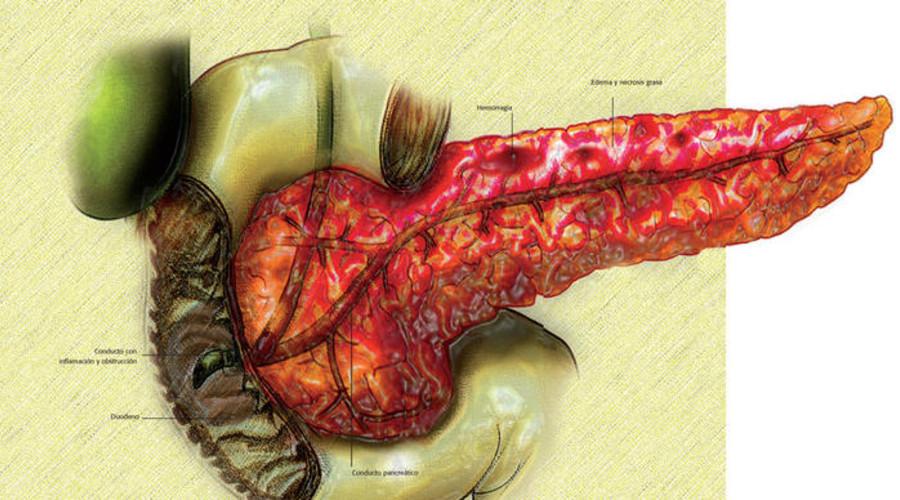 Pankreatitis menahun