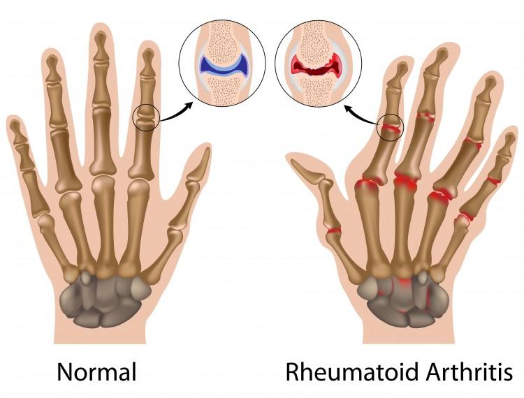 Rheumatoid Arthritis Ringan