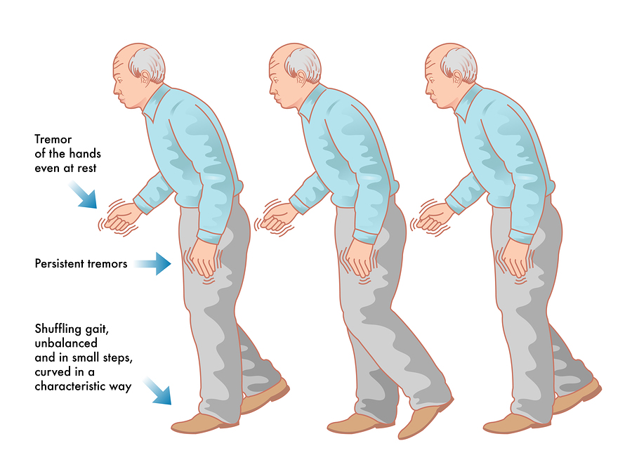 penyakit parkinson idiopatik