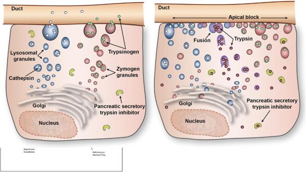 Penyakit Necrohemorhagic Pankreatitis