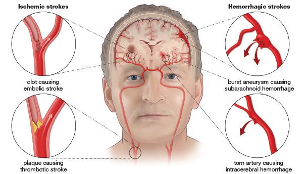 bahaya penyakit stroke