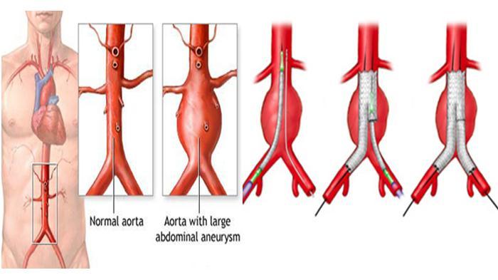 operasi pembuluh darah