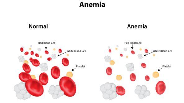 penyakit anemia aplastik
