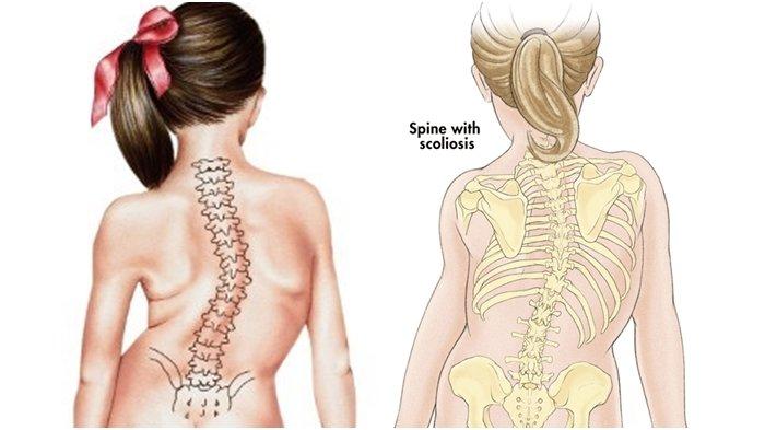 perbaikan tulang belakang