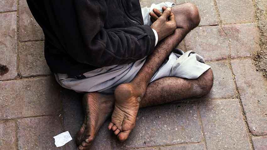 Menderita Poliomyelitis Sedang