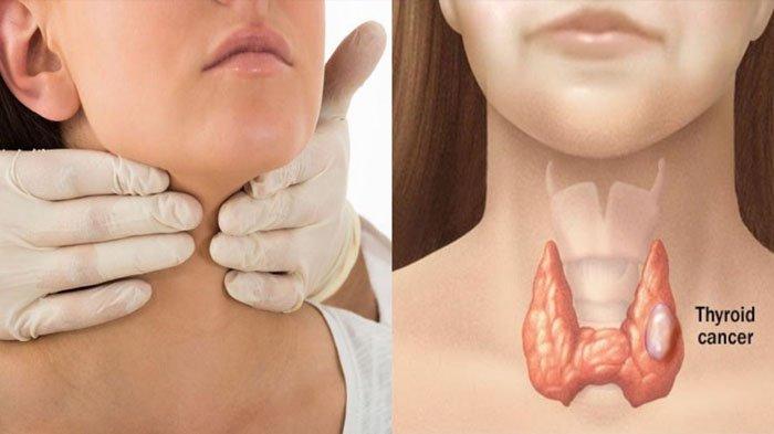 terkena kanker tiroid