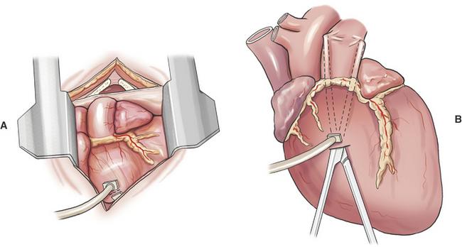 Apa Itu Pericardiectomy