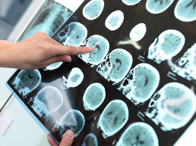 Penyakit Peradangan Otak