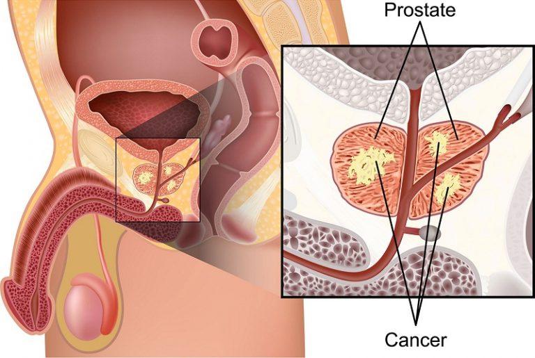 Секс при хроническом бактериальном простатите как принимать бобровую струю настойку от простатита
