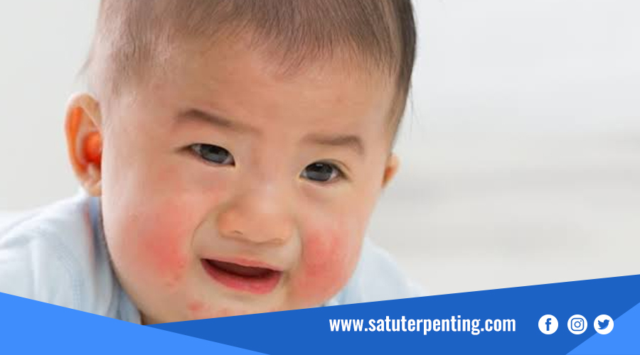 penyakit dermatitis
